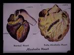 Alcoholic heart